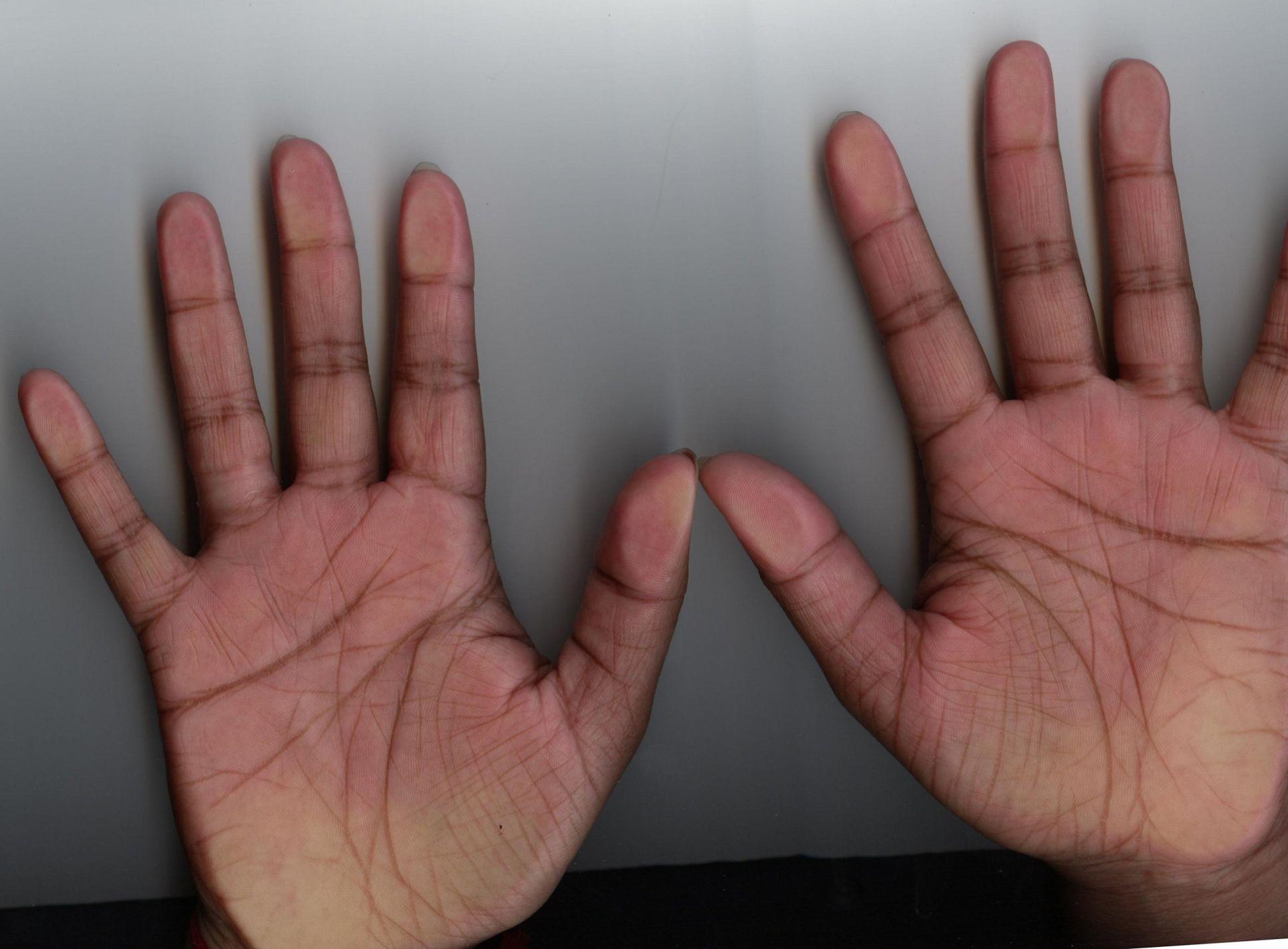 Palm Scan copy